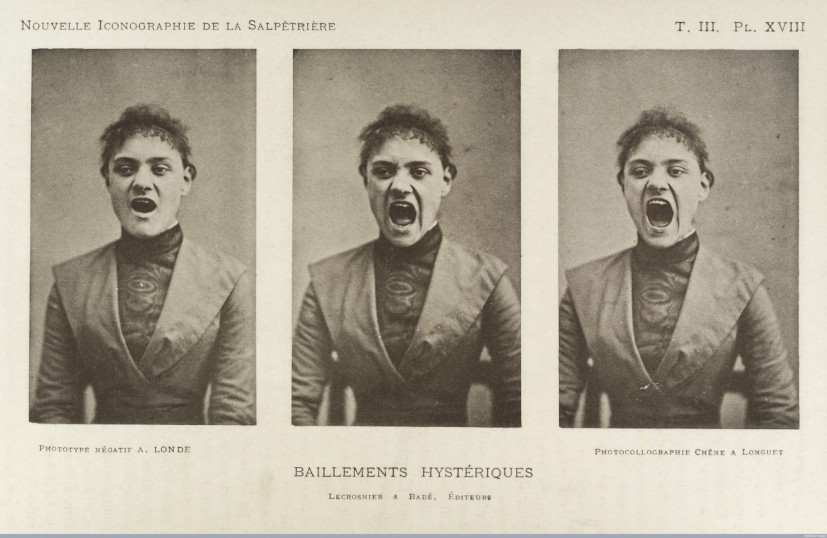 Albert Londe, Three photos in a series showing a hysterical woman yawning, c.1890, From Nouvelle Iconographie de la Salpetriere, Clinique des Maladies du Systeme Nerveux. Photo; Wellcome Library, London CC BY 4.0
